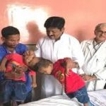 Phase II Surgery on conjoined twins begins at AIIMS, Delhi